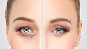 Closeup of eyes before and after anti-aging treatment