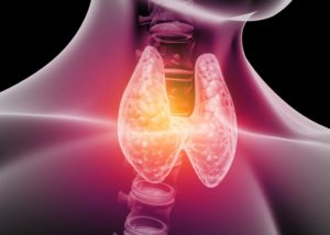 thyroid in need of treatment